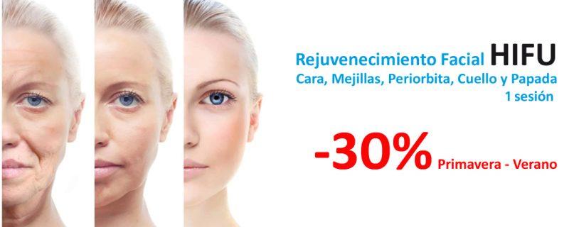 HIFU Facial 30% de descuento